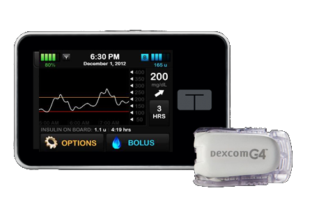 Tandem t:slim and Dexcom